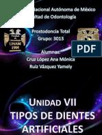 tiposdedientesartificiales2-120327223429-phpapp02