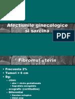 Afectiunile Ginecologice Si Sarcina