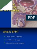 BPH- Full