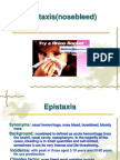 Epistaxis and Tumor