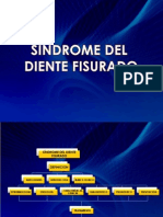 síndrome diente fisurado.pptx