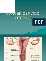 Cancer,., Cervico Uterino