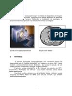 Tomografia Helicoidal