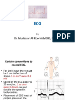 ECG Lecture 1 by Dr. Roomi