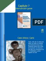 Spanish Chap 7 Malnutrition - Case 1