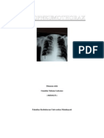 Hid Ro Pneumothorax