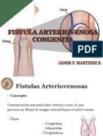 fistulaarteriovenosacongenita-121123051711-phpapp02