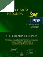 Atelectasia Redonda