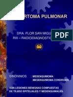 Hamartoma Pulmonar