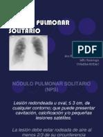 Nódulo Pulmonar Solitario (2)