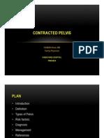 Contracted Pelvis