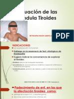 Evaluación de las Glándula Tiroides