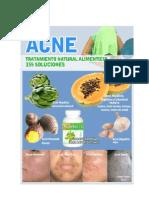 acne-.pdf