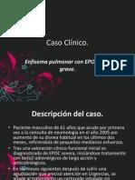 Caso Clinico Sx de Rarefaccion.