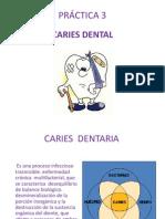 p3 Caries Dentaria