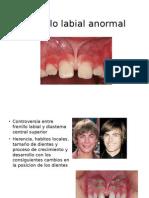 Frenillo Labial Anormal
