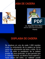 9173824 Displasia de Cadera