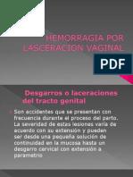 Hemorragias y Desgarres Por Lasceracion Vaginal