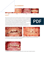 Drug Induced Gingival Overgrowth