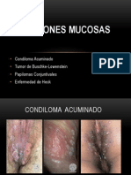 Lesiones Mucosas