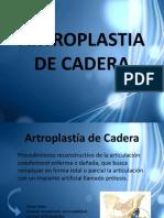 Artroplastia de Cadera Set