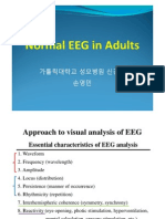 Normal EEG in Adults