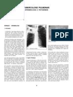 Tuberculose Pulmonar - Epidemiologia e Patogenese