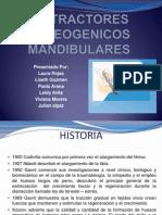 DISTRACTORES OSTEOGENICOS MANDIBULARES