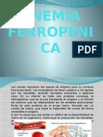 ANEMIA FERROPENICA - EXPO.pptx