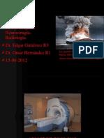 Neuro Pb Meduloblastoma 15 Agosto 2012