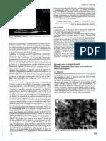 Liposarcoma retroperitoneal inusual presentación clínica como síndrome febril prolongado Rev Clin Esp 185 7 1989