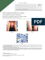 Urticaria Pigmentosa-mastocitosis Sistemica 2011