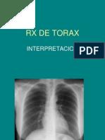 23726241 Interpretacion de Radiografias Toracicas