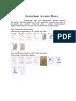 Laudos Papiloscópicos de casos Reais