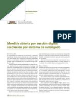 243 CASO CLINICO Mordida Abierta Succion Digital