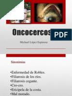 Michael Lopez. Oncocercosis