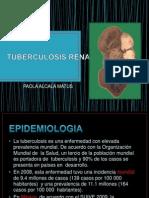 ......Tuberculosis Renal