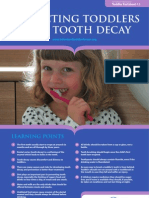 Preventing Tooth Decay