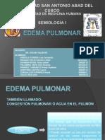 6 Edema pulmonar.pptx