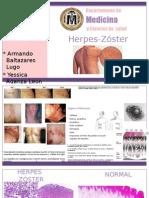 Herpes-Zóster