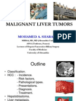Malignant Liver Tumors Undergrad 6th Year Students Sharaan