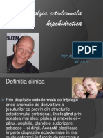 displazia ectodermala hipohidrotica
