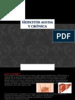 Hepatitis aguda y crónica