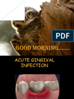Acute Gingival Infections