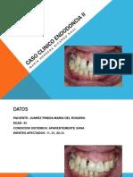 Caso Clinico Endodoncia II