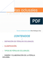 Ferulas_oclusales