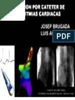Ablacion Cateter Arritmias Cardiacas