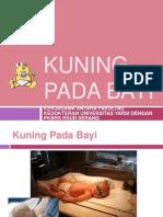 KUNING PADA BAYI.ppt