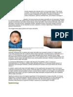 Pediatric Atypic Dermatitis