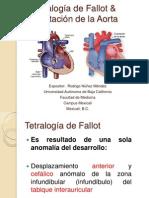 Tetralogía de Fallot & Coartación de la Aorta